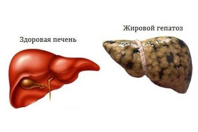 больная печень и большой живот