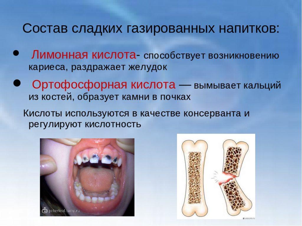 вред газировки для костей и зубов