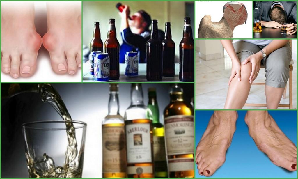 вред алкоголя для костей