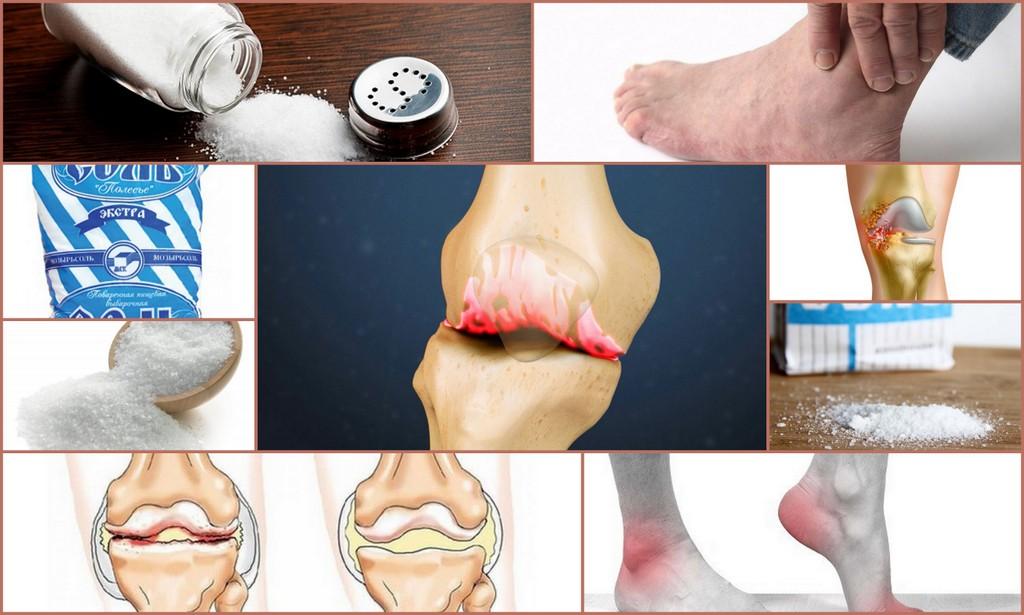 вред соли для суставов