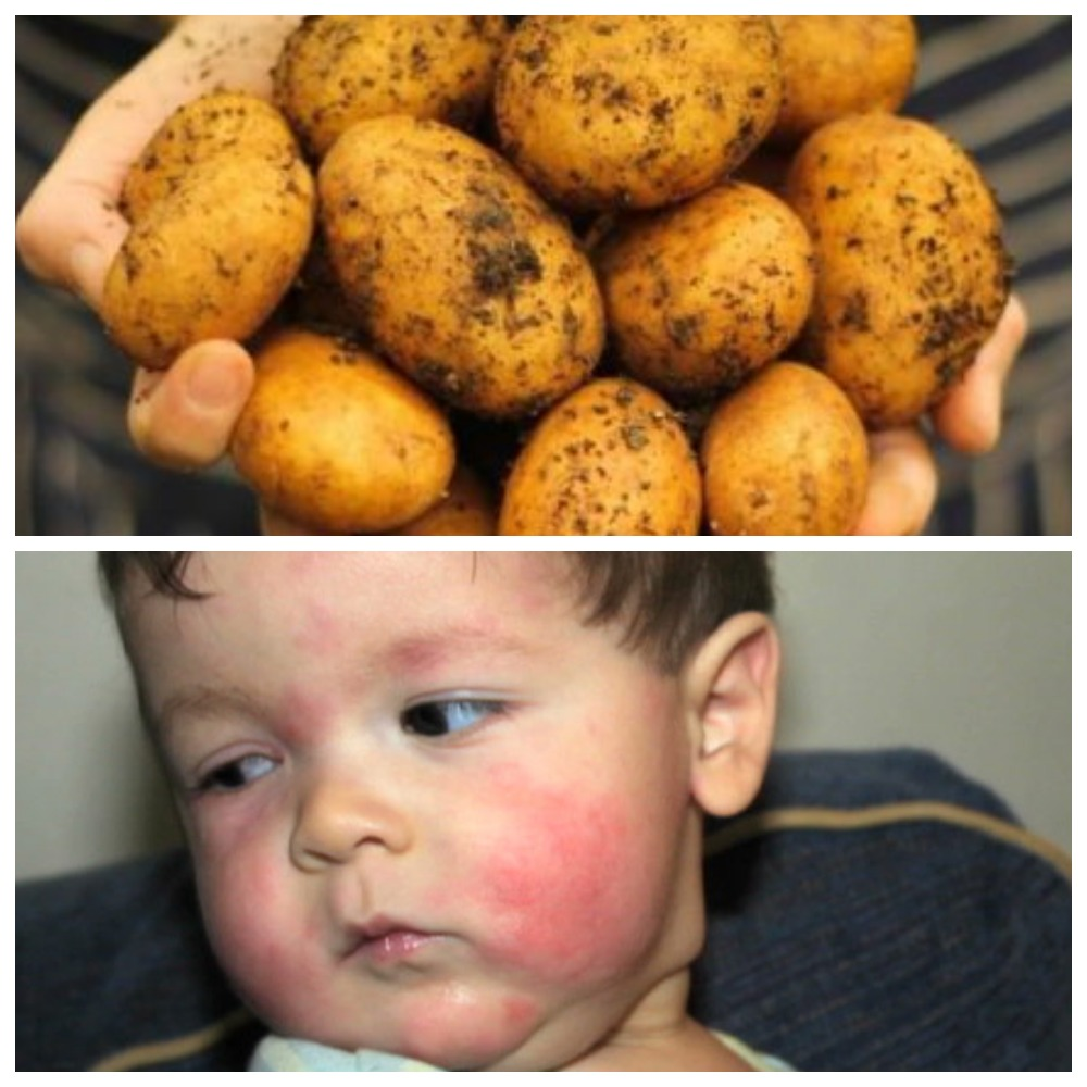 алергия на картофель