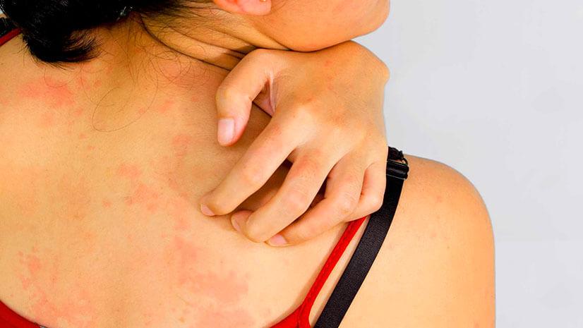 аллергия на боярышник