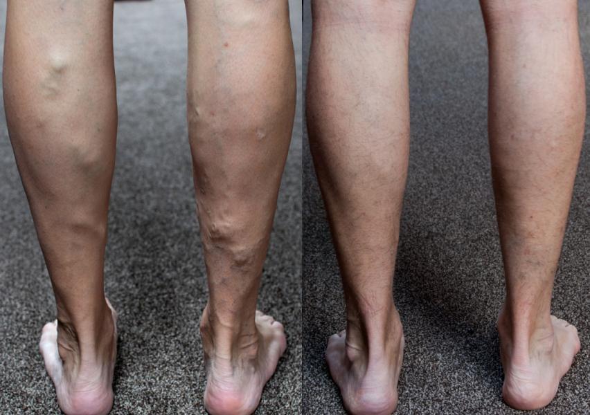 варикоз до и после лечения
