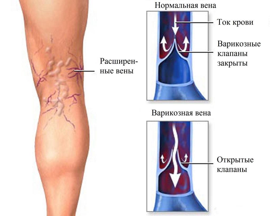 венозные клапаны при варикозе