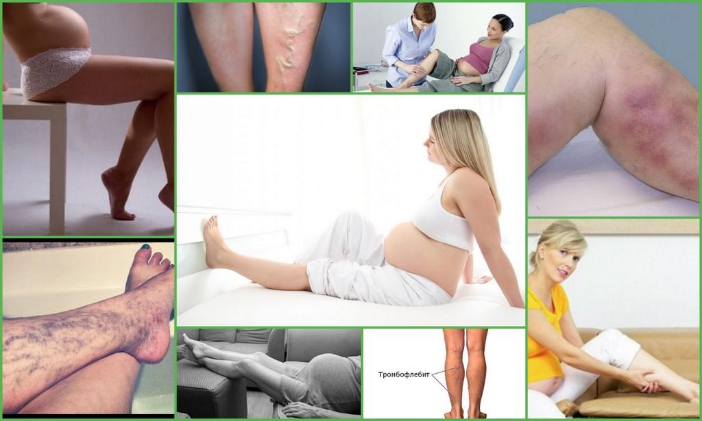 варикоз и беременность